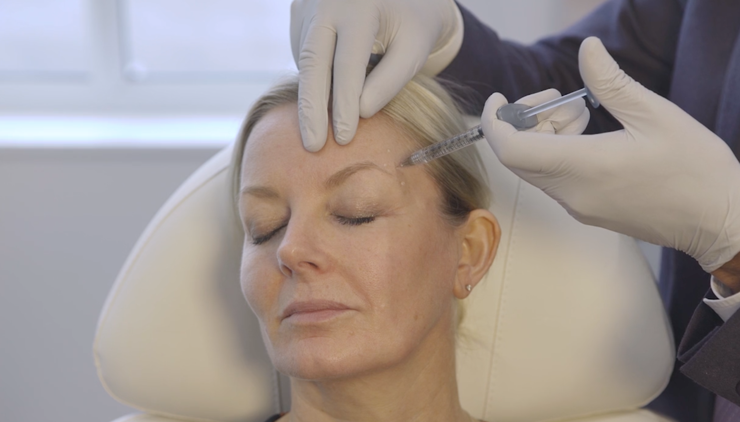 Treatment of the Glabellar Complex and crow's feet with Botulinum Toxin