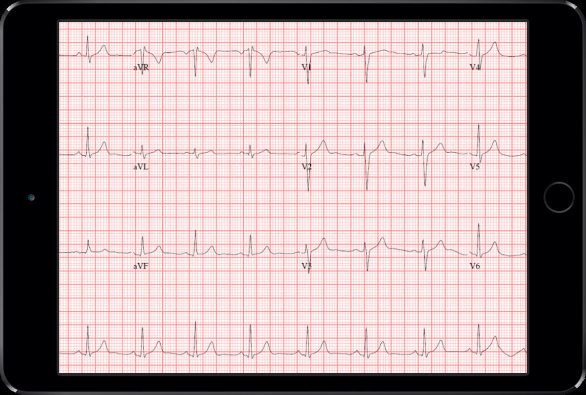 Demo ECG film- Heart App