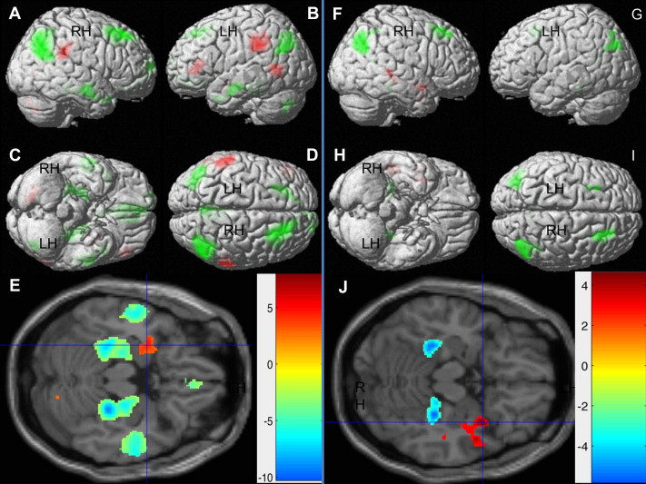 Fig.1.   Main Effects of Emotion. Regions showing significant BOLD response differences for emotion-laden versus neutral passages (  Table 3  ) – created using xjView toolbox. Red color indicates significant positive differences (Emotion>Neutral). Green and blue indicate significant negative differences (Emotion<Neutral). A and F: right lateral view; B and G: left lateral view; C and H: inferior view; D and I: superior view; Left Panel: Fear versus Neutral; E:transverse sectionhighlighting leftamygdala.; Right Panel: Happy versus Neutral; J: transverse section highlighting right anteriortemporal cortex.