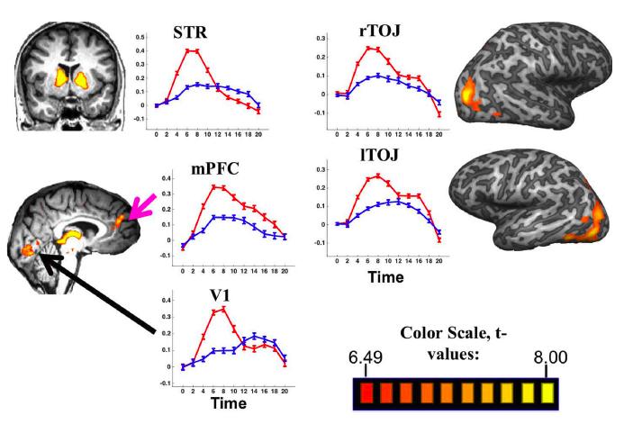 Regions with higher activation in the Humor vs. Mundane Condition: STR - striatum; V1 - visual cortex; mPFC - medial prefrontal cortex; rTOJ - right temporal occipital junction; ITOJ - lateral temporal occipital junction.