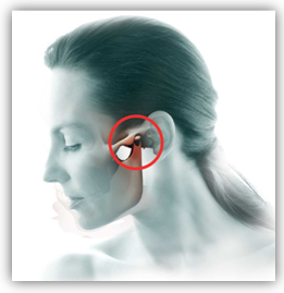 Temporomandibular joint and muscle disorders are problems of the chewing muscles and joints that connect your lower jaw to your skull.