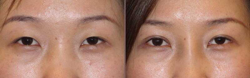 Asian Blepharoplasty_00001.jpg