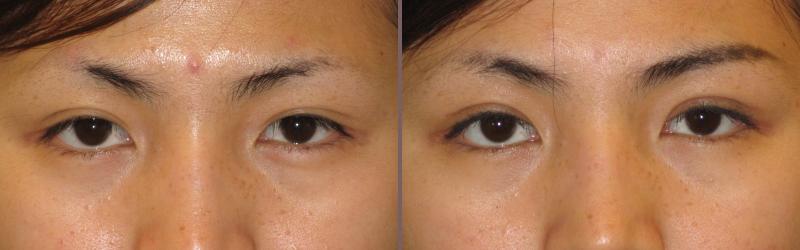 Asian Blepharoplasty_00003.jpg