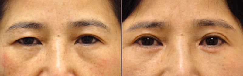 Asian Blepharoplasty_00006.jpg
