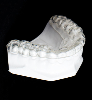 Teeth Protecting Mouthguard for TMJ