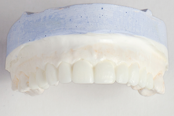 Building a 3D Model is an important step you will find only at Lorentzen Dental.