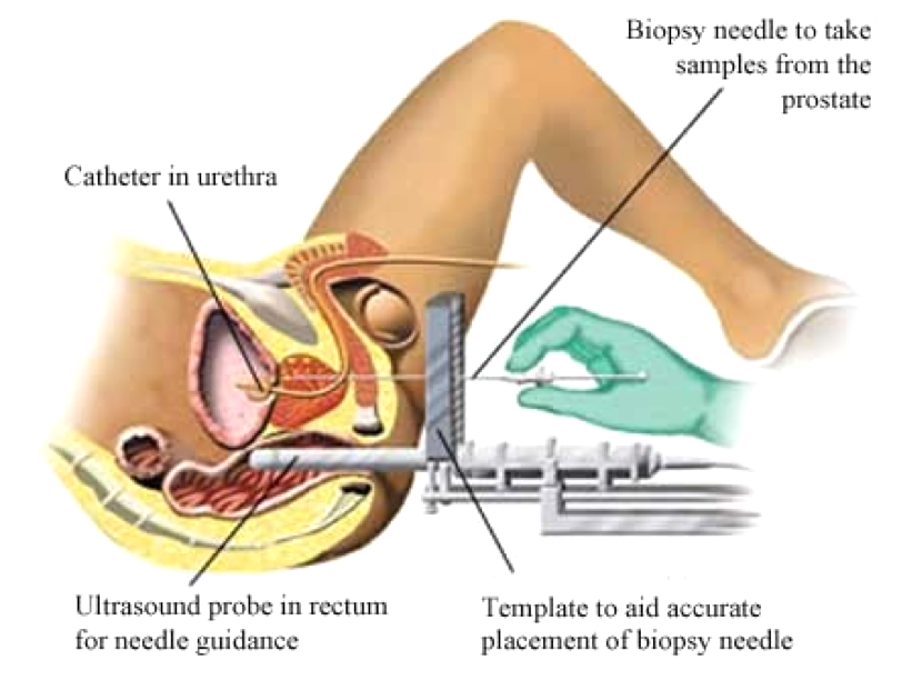 Safer method transperineal biopsy