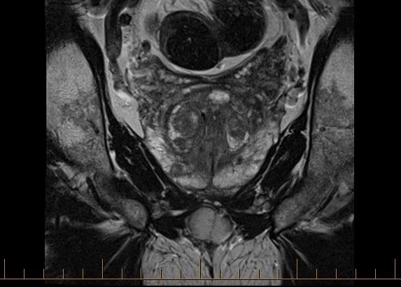 dr jeremy grummet mri prostate 1