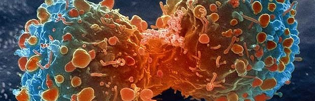 killing-cancer-2-620x336.jpg