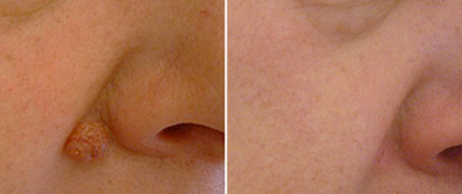 Skin Tags/Lesions