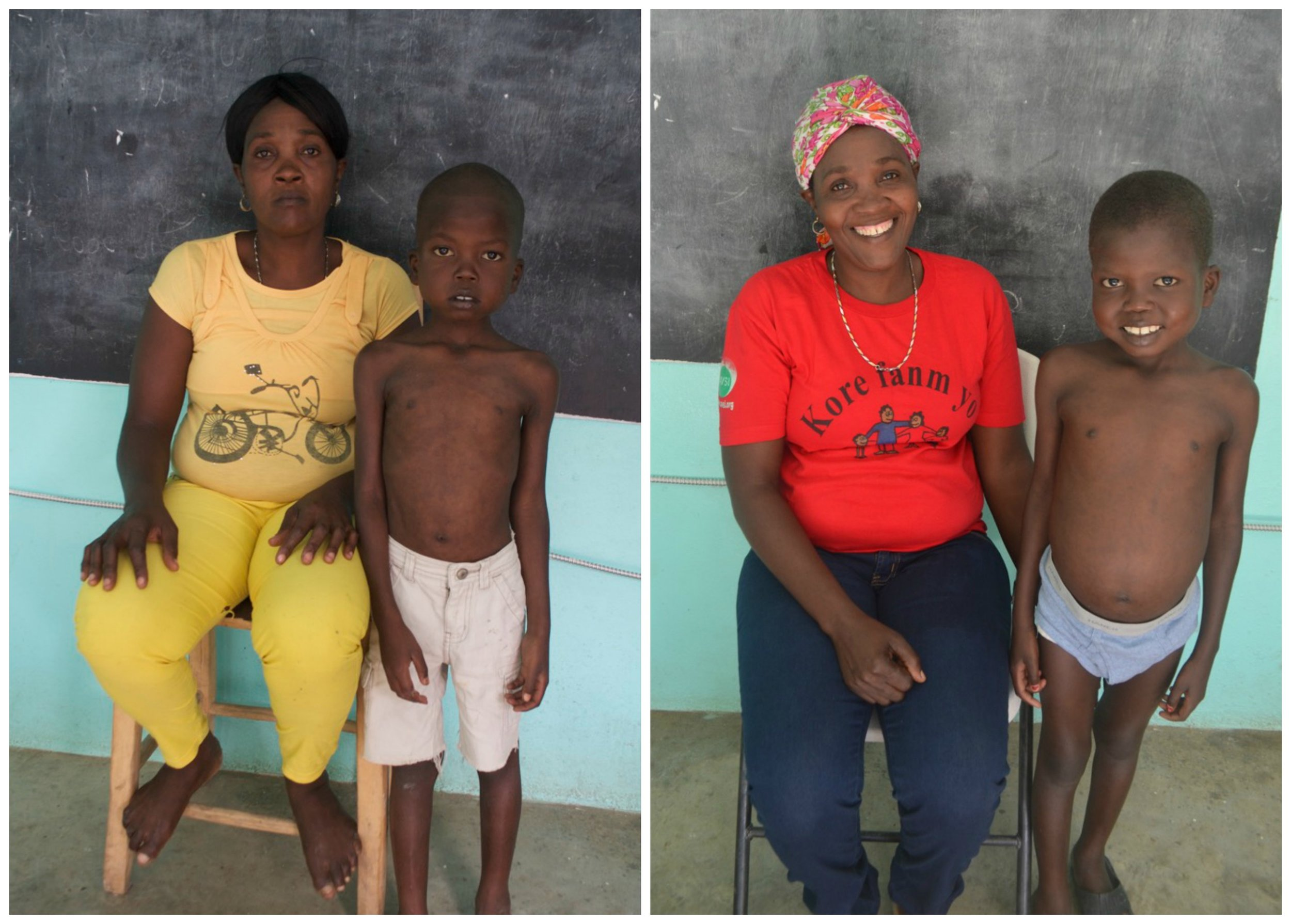 Kely and his Aunt before and after rehabilitation for Severe Acute Malnutrition