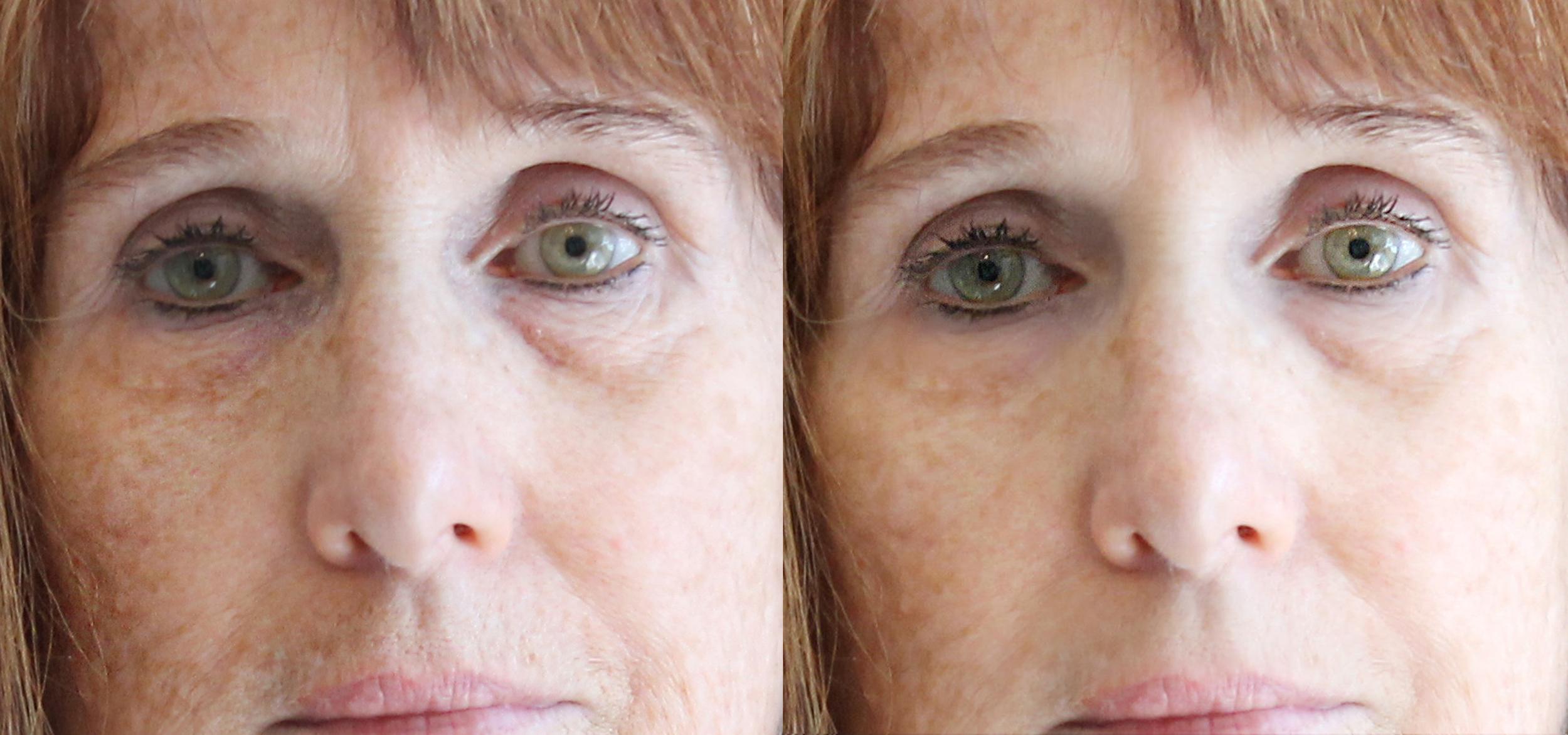 Illuminating Eye Repair