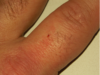 1st instar bed bug feeding on a human finger. (photo by: Sorkin and Mercurio, American Museum of Natural History)
