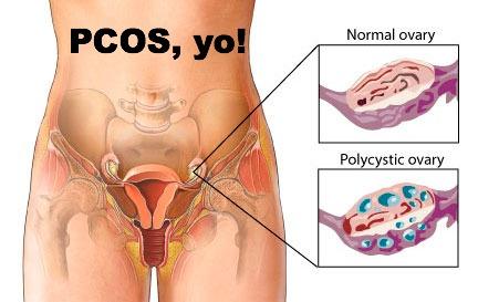 pcos1.jpg