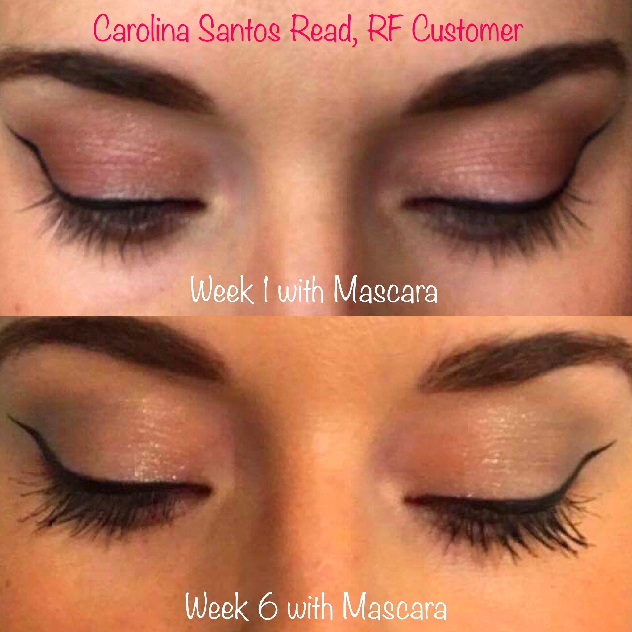 Here's my progress in just 6 weeks of using the product. These photos are unedited! Check out these modeling pics below to see how short my eyelashes were before. I tried eyelash extensions but I didn't like the maintenance or cost. This product really works!