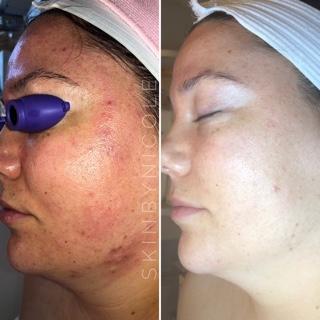 - Home care regime with nic-KOHL skincare a 2x facial custom treatmentshhhkkkk