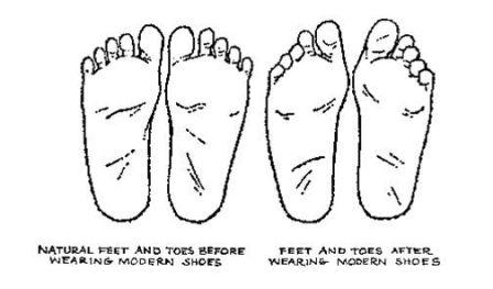 Foot Shape Change - sm.jpg