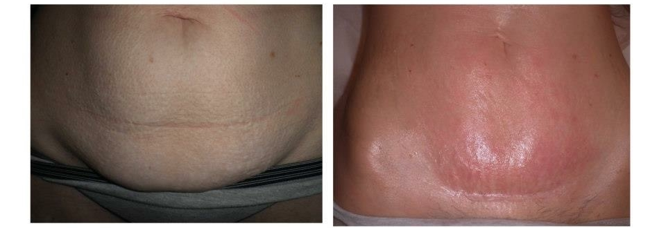 -Results of V-Tuck on a Post C-section Pouch-