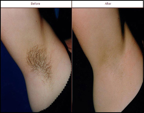 Laser Hair Removal The Skin Source