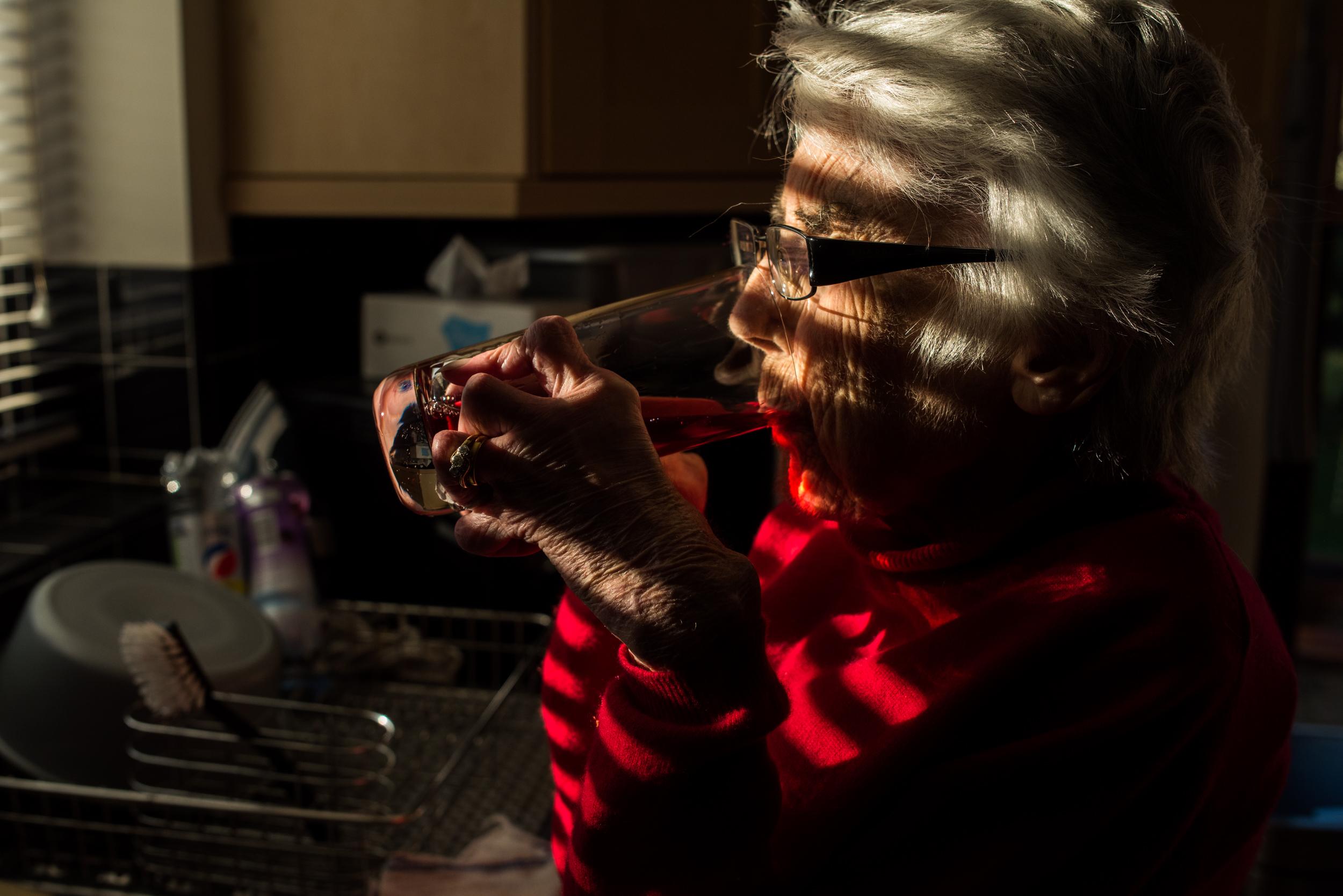 Swan Thumb - A story documenting Janet, A woman with severe Rheumatoid Arthritis