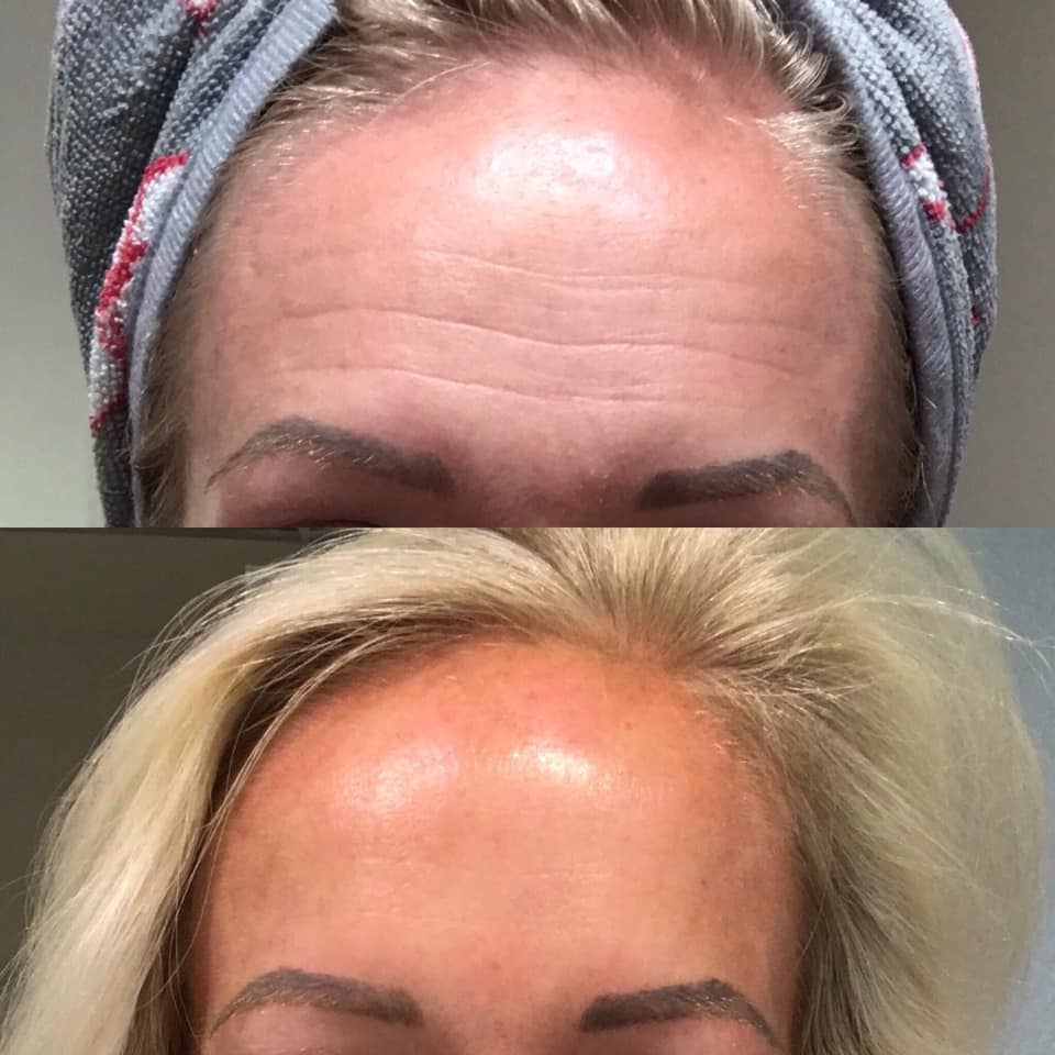 Before and After images of countertime after one month!