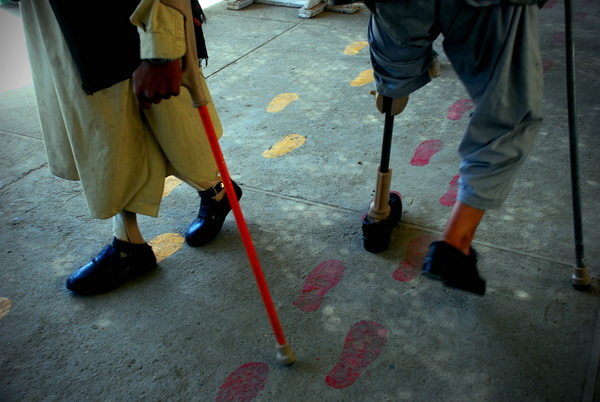 korban-perang-berlatih-berjalan-dengan-kaki-palsu