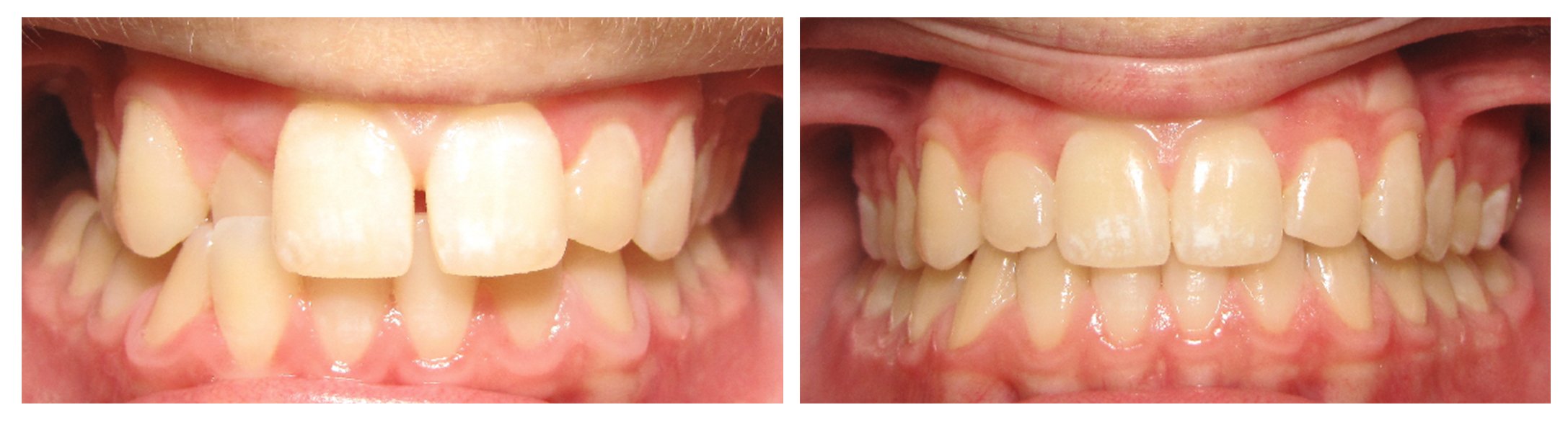Misaligned teeth in this example were corrected with  Invisalign . Every treatment plan is different. Dr. Green will assess your overall health goals and make recommendations to help you achieve a healthy smile.