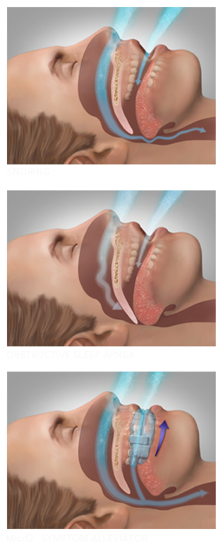 Illustration of Obstructive Sleep Apnea and how wearing MicrO2 sleep and snore device.