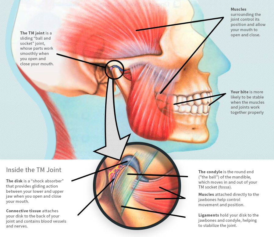 Tmj Pain Treatment Highly Trained Tmj Doctor Springfield Smile