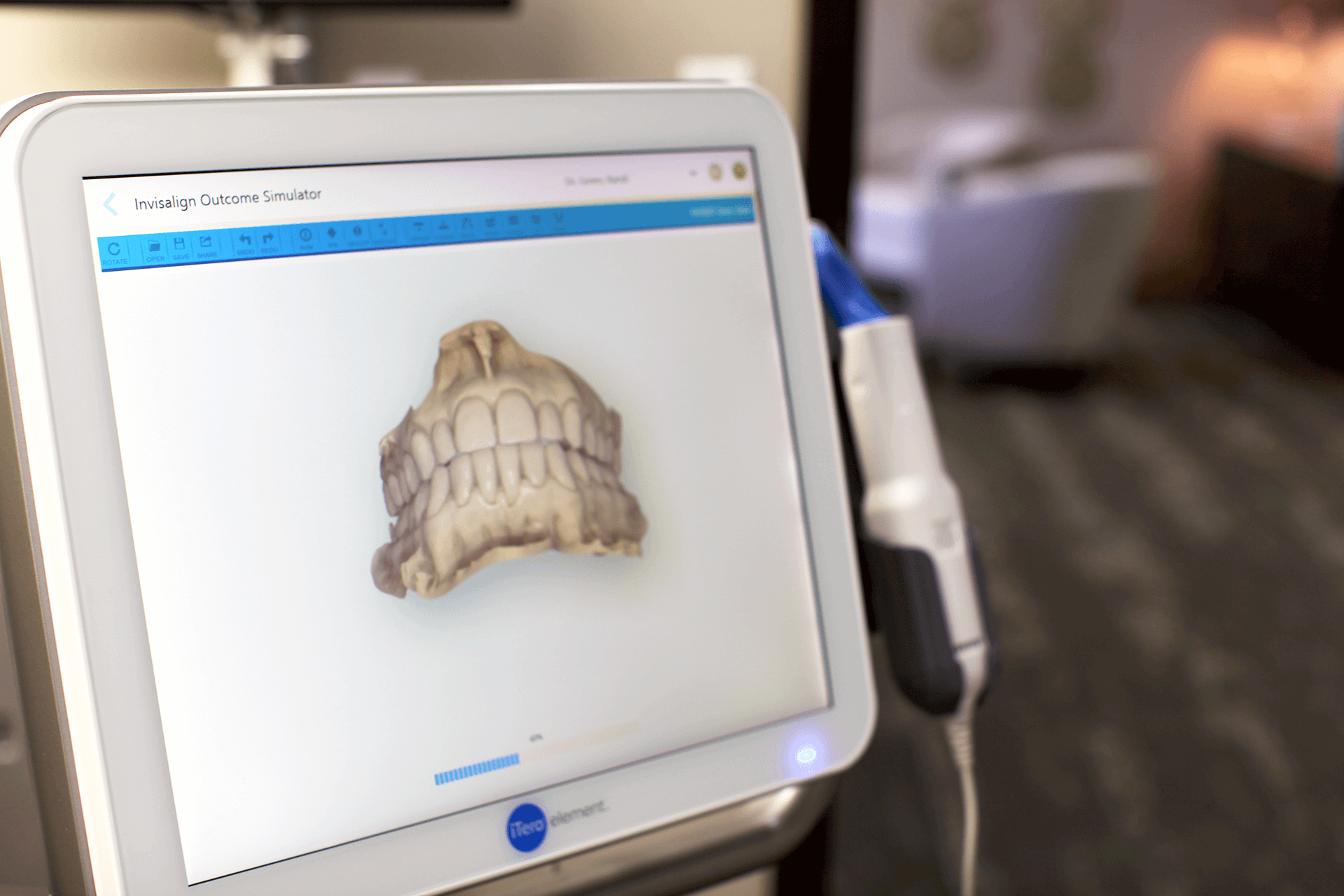 Invisalign outcome simulation available at Springfield Smile Doctor with iTero. Ask Dr. Green about your Invisalign animation.