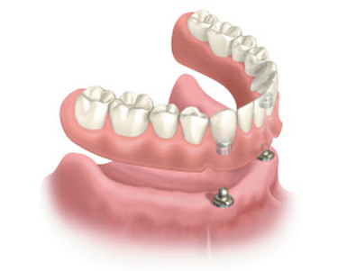 "Snap on cosmetic dentures  can ""snap on/off"" dental implants for maximum lifestyle flexibility. (Illustration)"