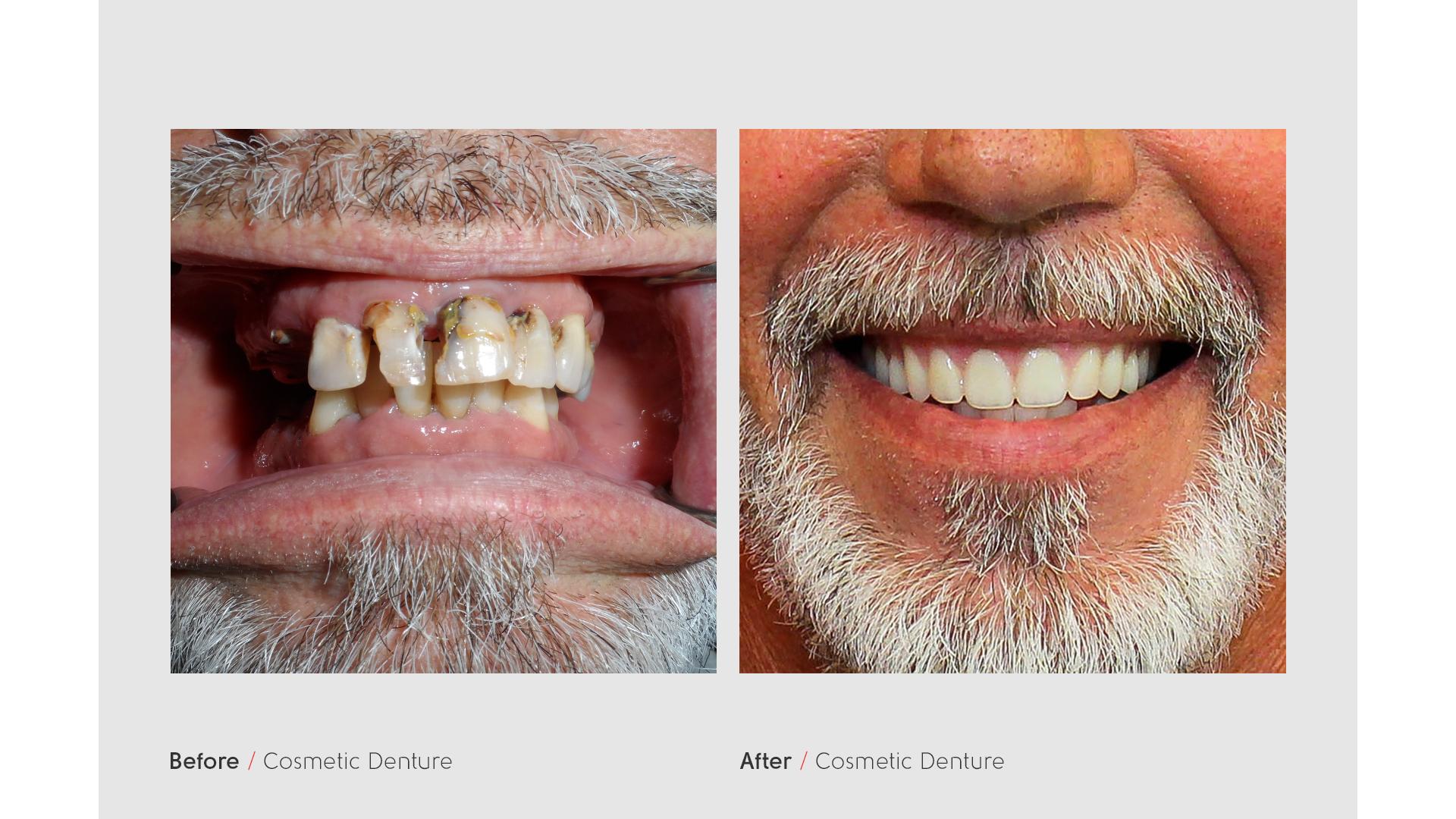 carl-teeth.png