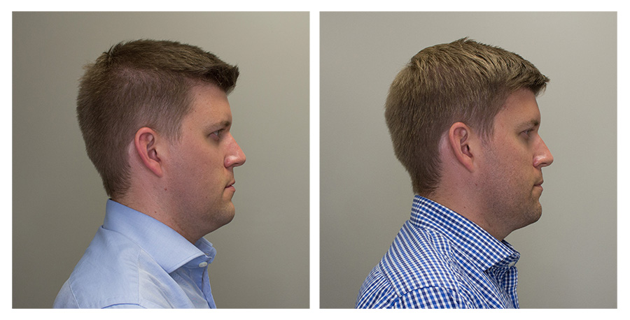 Right Face   —   Left on Day 1 / Right on Day 70