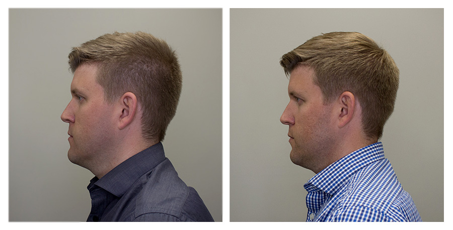 Left Face   —   Left on Day 2 / Right on Day 70
