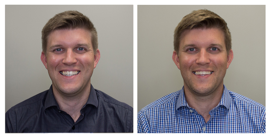 Forward No Smile   —   Left on Day 2 / Right on Day 70