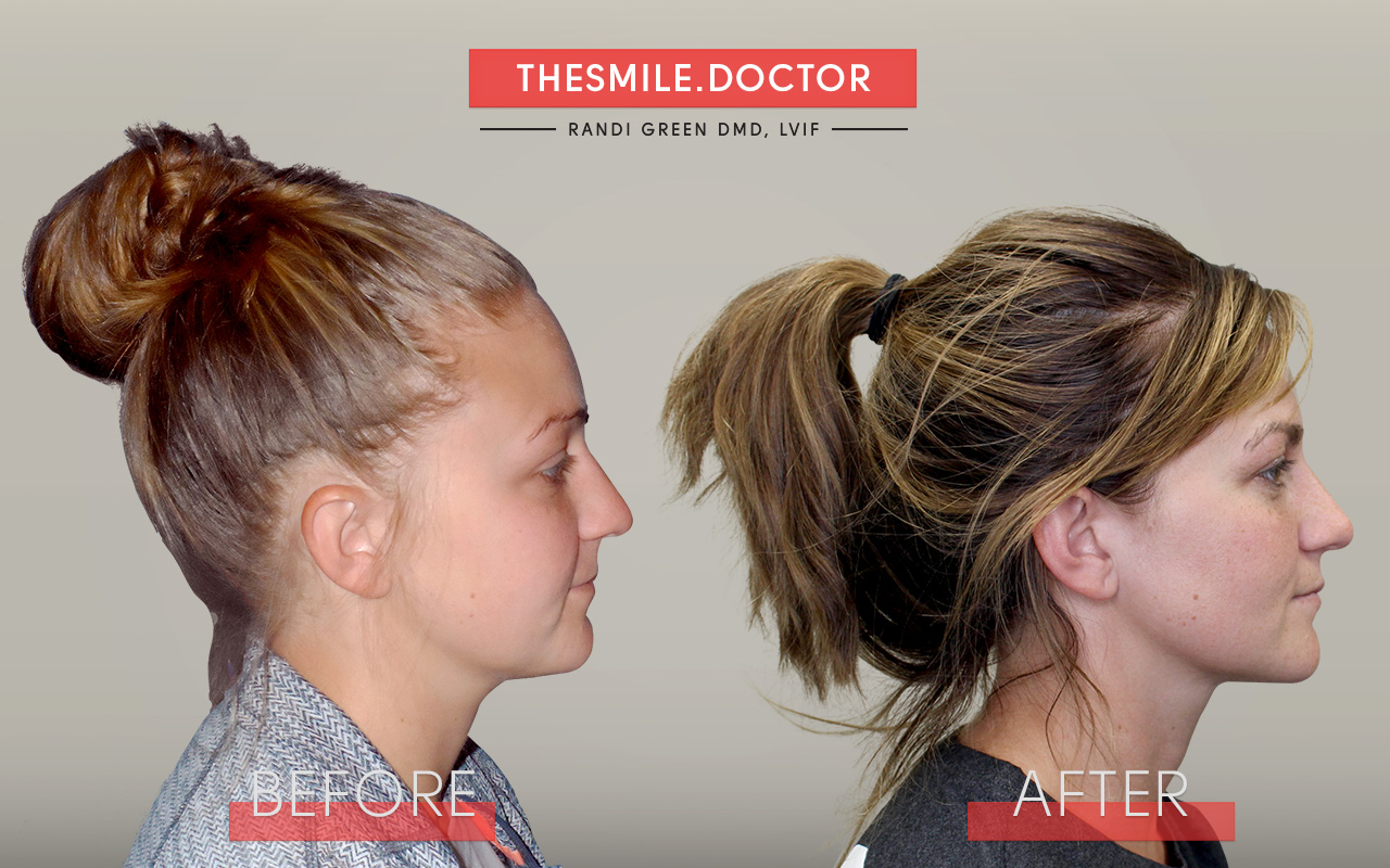 facial-growth-orthodontics-dr-green-courtney-before-after-agga.jpg