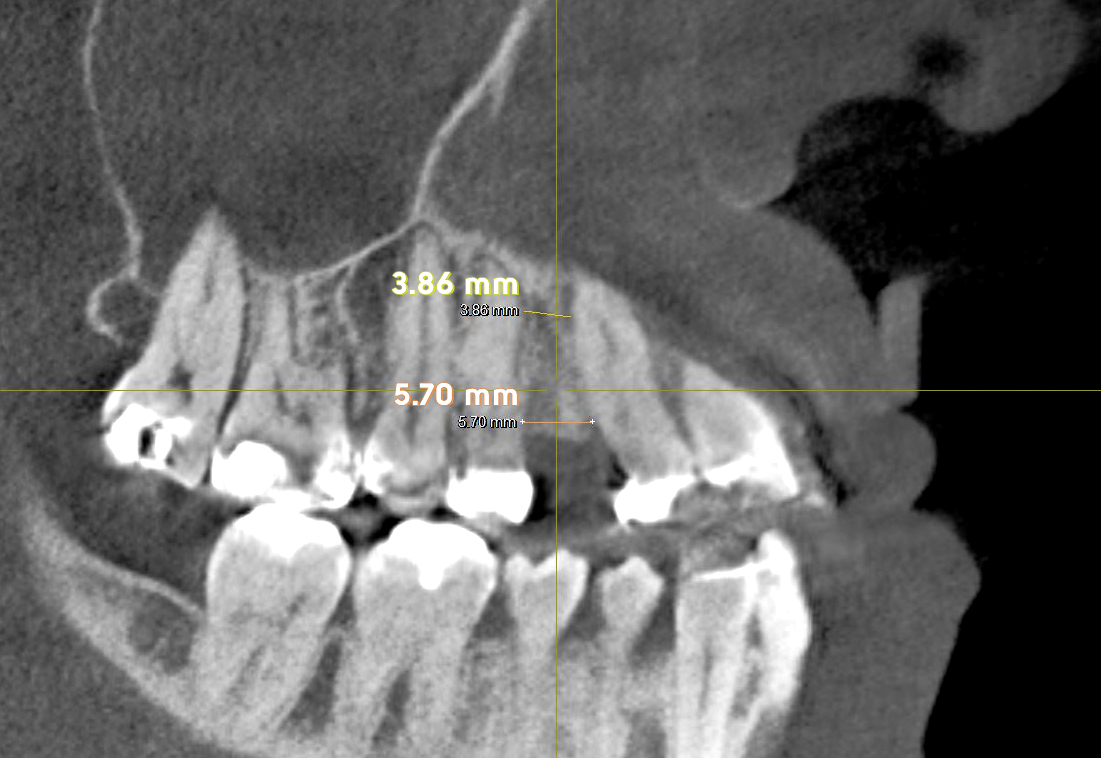 My right side shows bone formation with AGGA remodeling! I am currently at ~8 mm on right and left, but this 3D X-ray shows new bone remodeling.