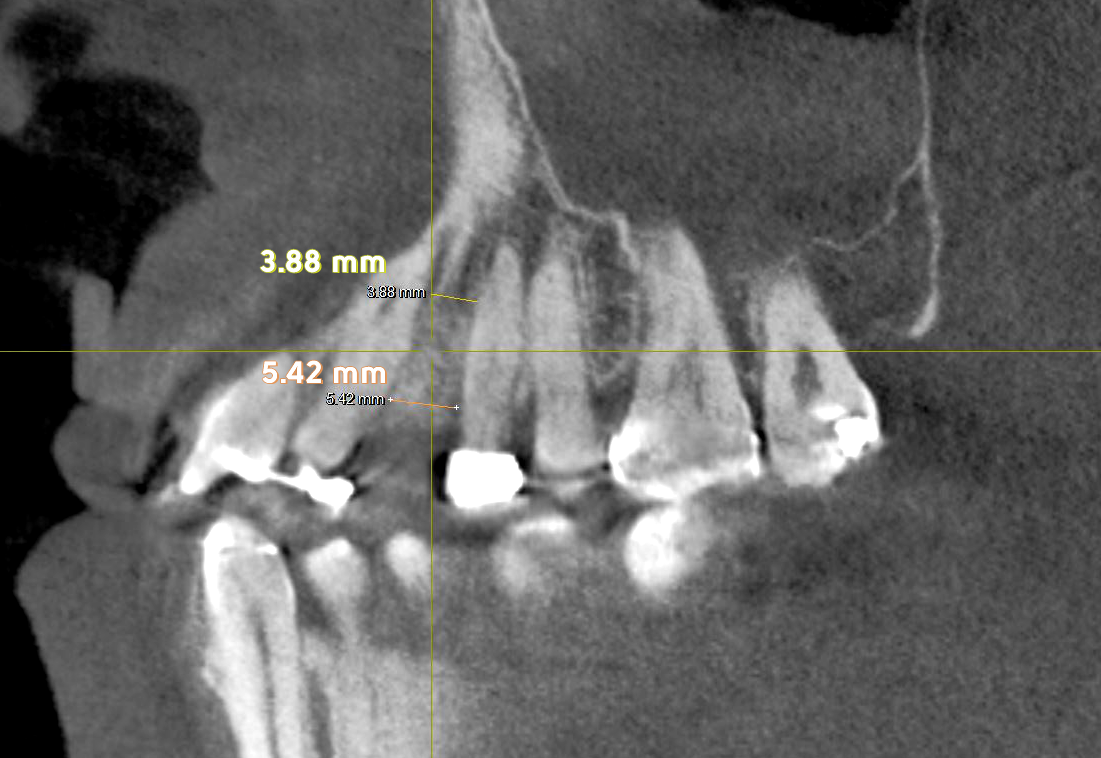 Same with the left side, AGGA has remodeled bone in my maxilla and the CBCT scan shows the new bone formation all the way up.