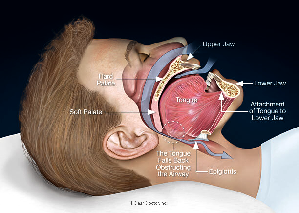 Gravity and muscle relaxation during sleep allows the tongue and surrounding soft tissues to move back into the throat area obstructing airflow preventing restful sleep. Get sleep apnea treatment near you.