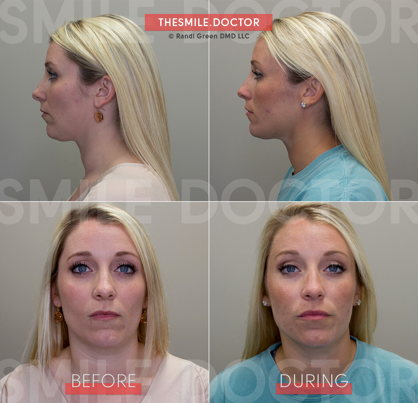 After relieving Arwen's TMJ pain with a reversible TMD therapy, Dr. Green finished the case with Facial Growth Orthodontics to gain additional benefits for her physiologic biting position along with a cosmetic facelift at the dentist!