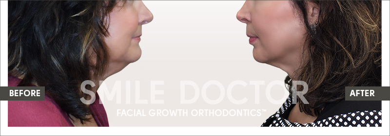 facelift-from-a-dentist-before-and-after-facial-growth-orthodontics-with-dr-randi-green-smile-doctor-002.png
