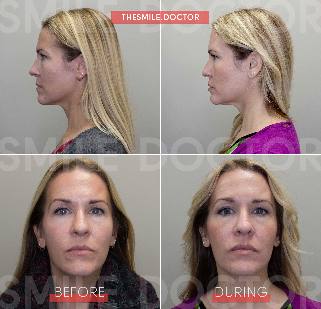 agga-growth-progress-with-amy-2-facial-growth-orthodontics.jpg