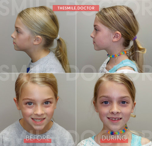 The Effect Of Airway On Facial Growth Springfield Smile Doctor