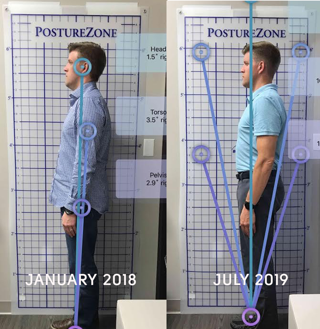 AGGA treatment full body profile image showing improved jawline and posture