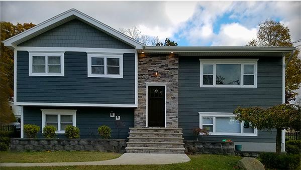 New Siding, Stone & Window Design in Westfield, New Jersey.