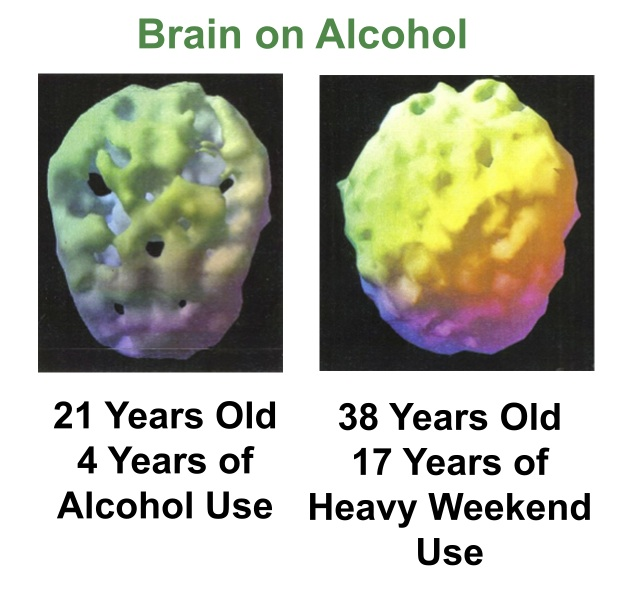 Brain Scans -Alcohol