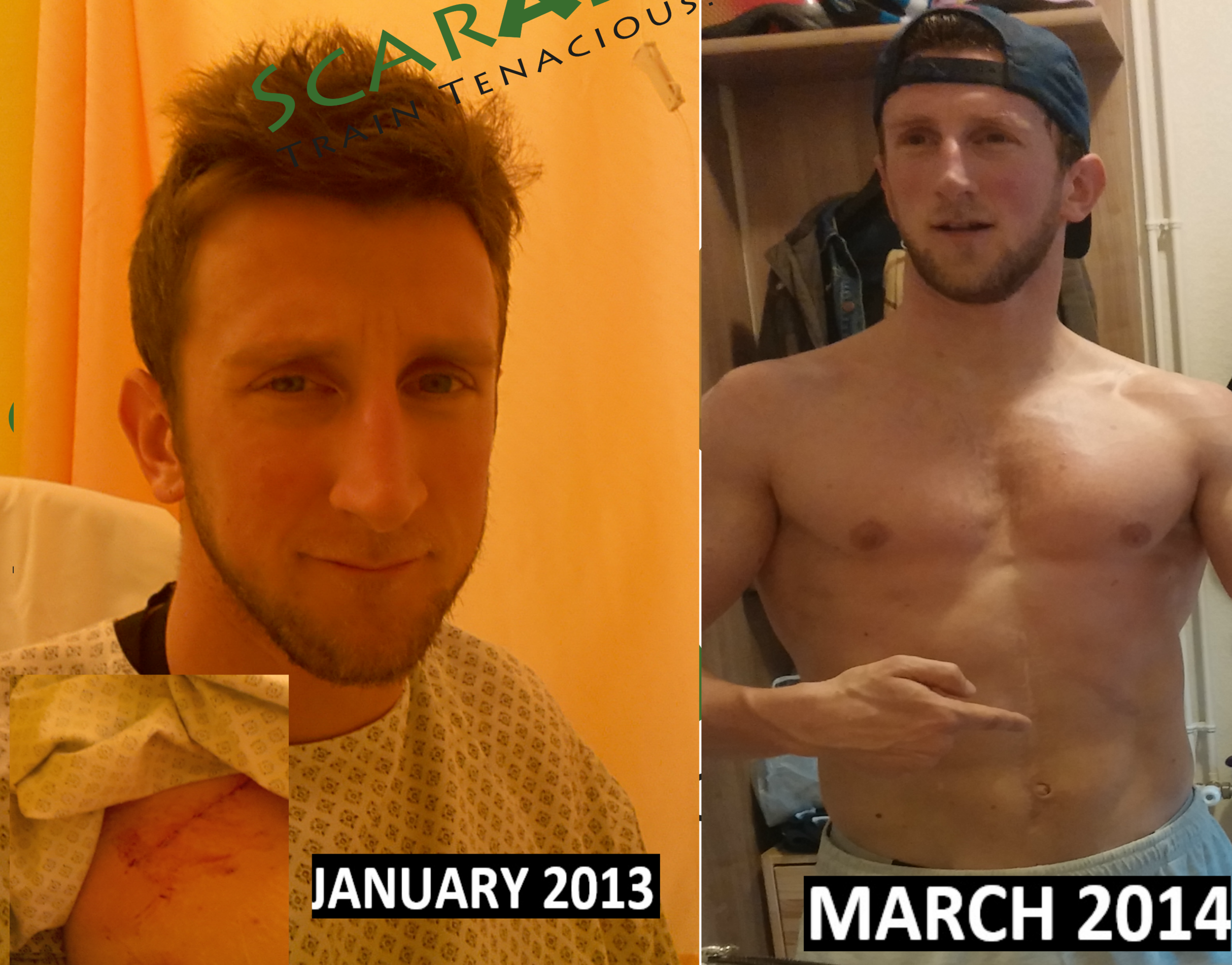 Different dates...different look at my scars!!