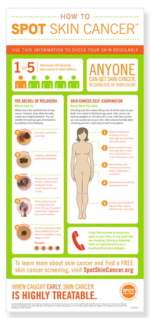 how-to-spot-skin-cancer-infographic-thumbnail.jpg