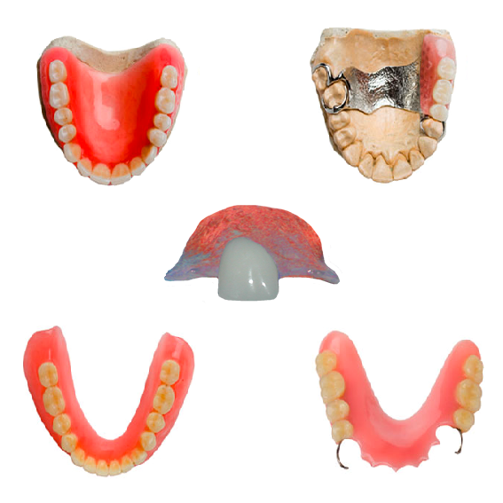 "Examples of ""Dentures."""