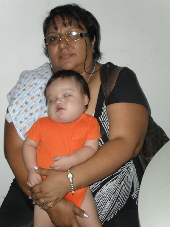 Leonardo, before his first surgery, held by his aunt, with whom the family lives.
